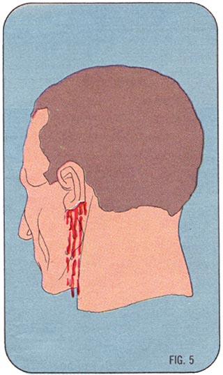 DIAGRAM       Avulsions  Fig 5