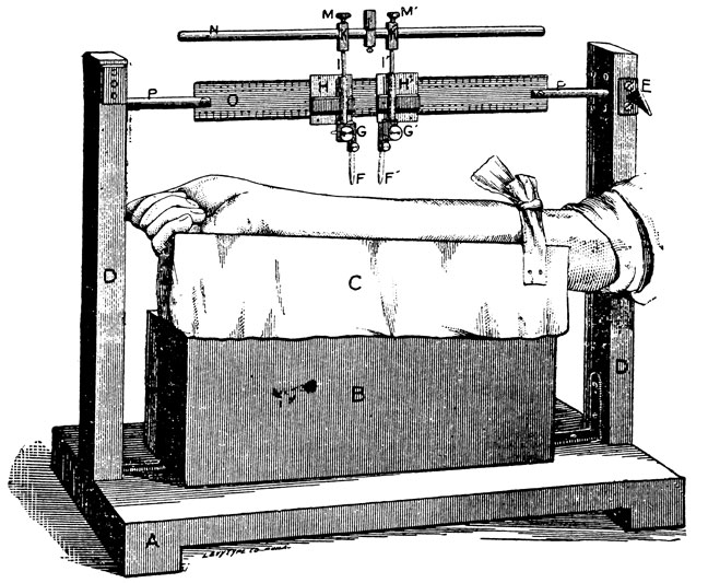 diagram    a new aesthesiometer
